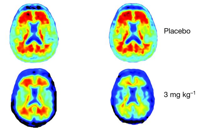 Buone notizie dalla sperimentazione di un farmaco contro l'Alzheimer