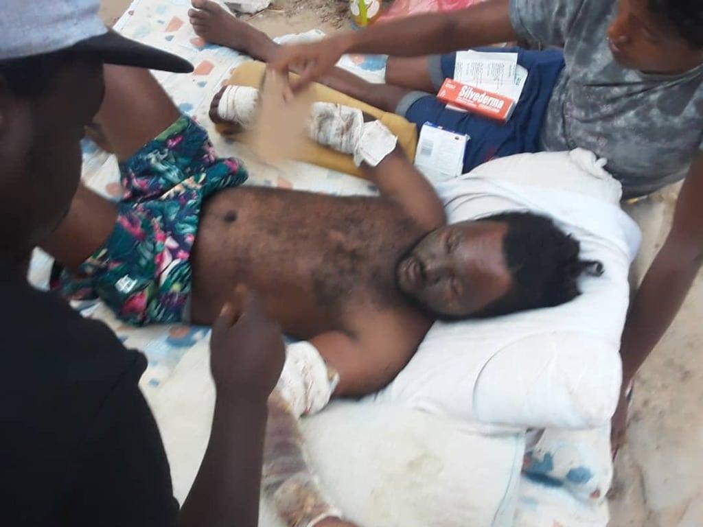 Un sopravvissuto del naufragio del 17 agosto 2020, Zuara, Libia. - Alarmphone